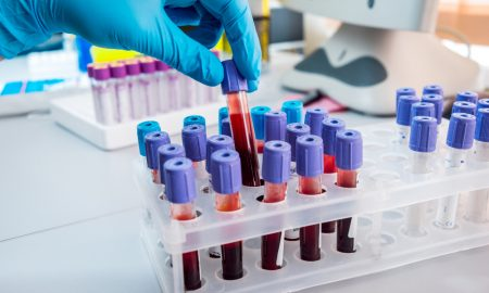 blood test stock image