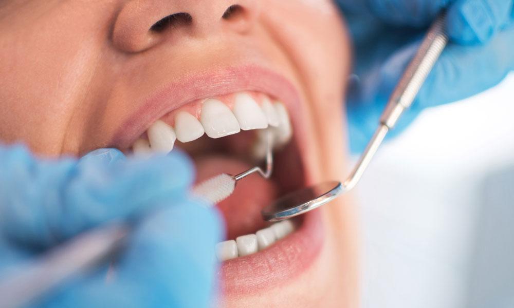 Dentist mouth